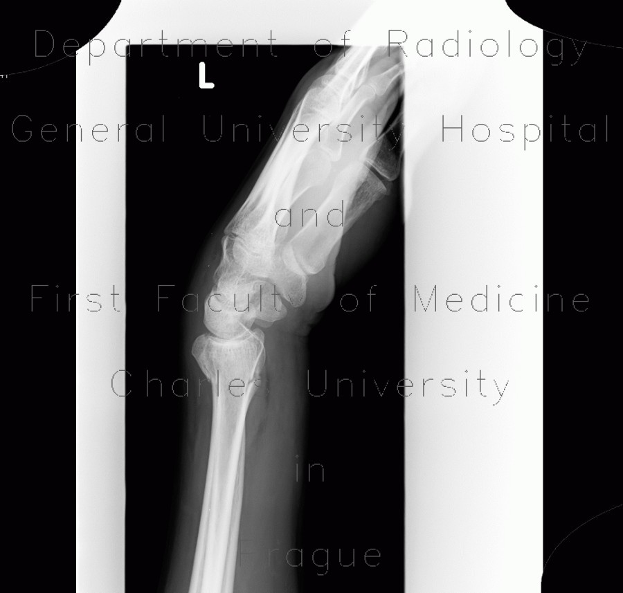 Radiology image - Colles fracture, pronator quadratus, fat pad sign: Extremity, Bone: X-ray - Plain radiograph