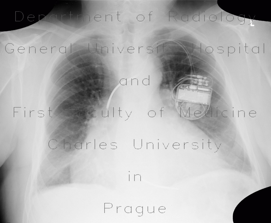 Radiology image - Congestive hepatopathy, biphasic flow in portal vein, heart failure, congestion: Thorax, Heart, Liver, Vessels: X-ray - Plain radiograph
