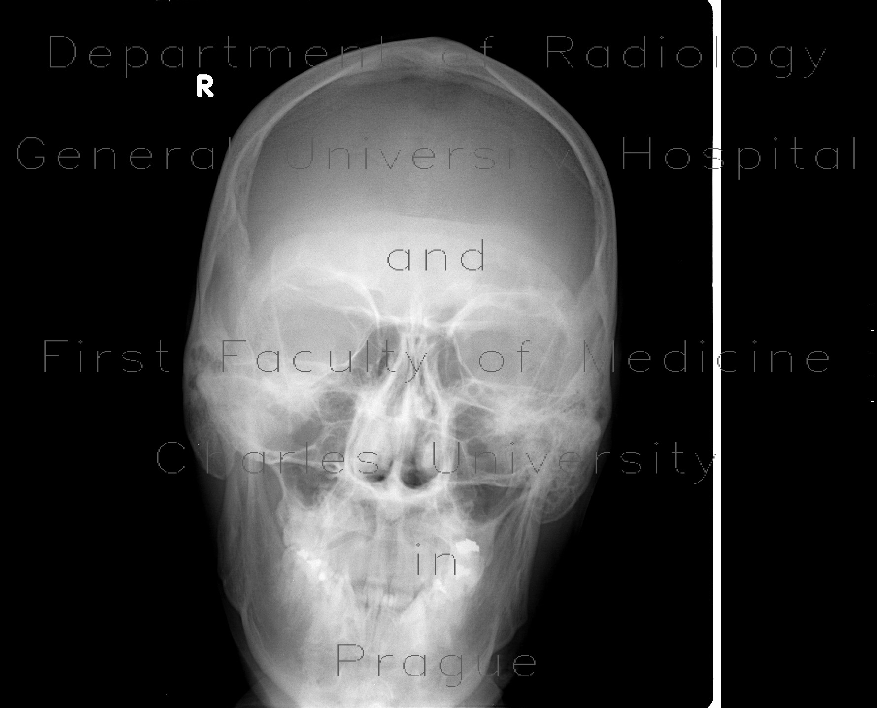 Radiology image - Craniotomy: Head and Neck, Bone: X-ray - Plain radiograph