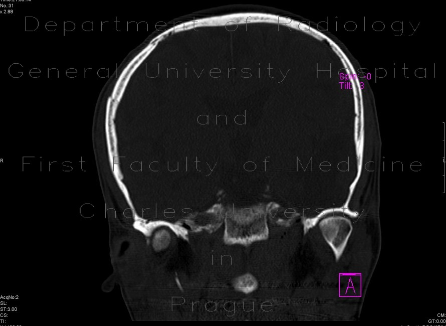 Radiology image - Depression fracture of the skull: Brain, Bone: CT - Computed tomography