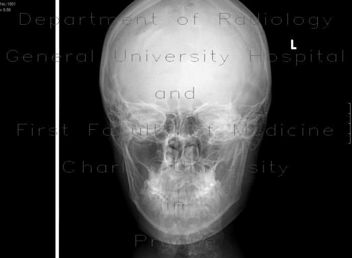 Radiology image - Depressive fracture of skull: Brain, Head and Neck, Bone: X-ray - Plain radiograph