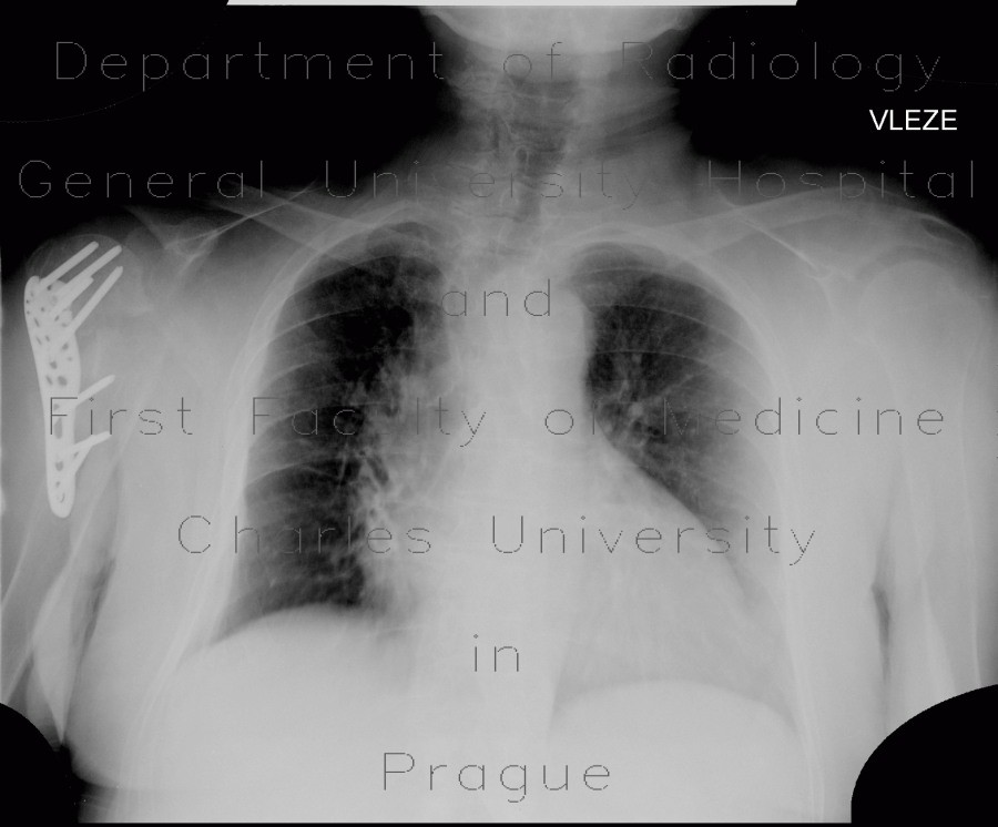 Radiology image - Deviation of trachea: Thorax, Lung: X-ray - Plain radiograph