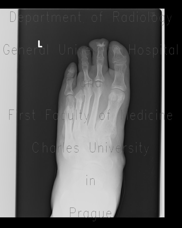 Radiology image - Diabetic foot, amputation of fourth finger, periosteal reaction in metatarsal bone: Extremity, Bone: X-ray - Plain radiograph