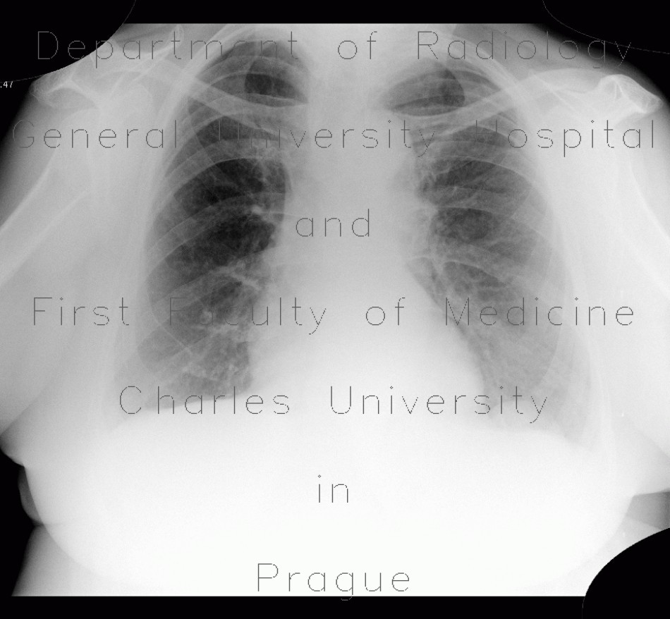 Radiology image - Diaphragmatic lobulation: Thorax, Lung, Mediastinum and pleural cavity: X-ray - Plain radiograph