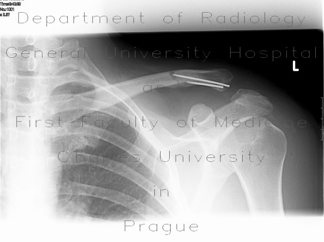 Radiology image - Diastasis in acromioclavicular joint after removal of osteosythetic material: Extremity, Bone: X-ray - Plain radiograph