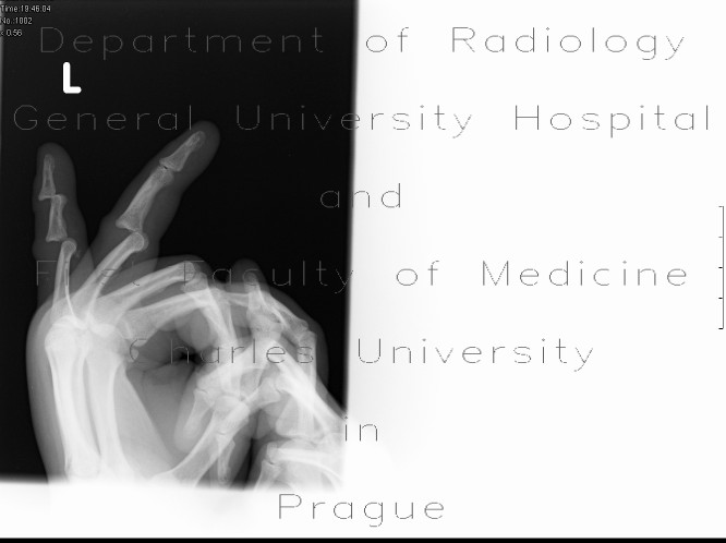 Radiology image - Dislocation of interphalangeal joints: Extremity, Bone: X-ray - Plain radiograph