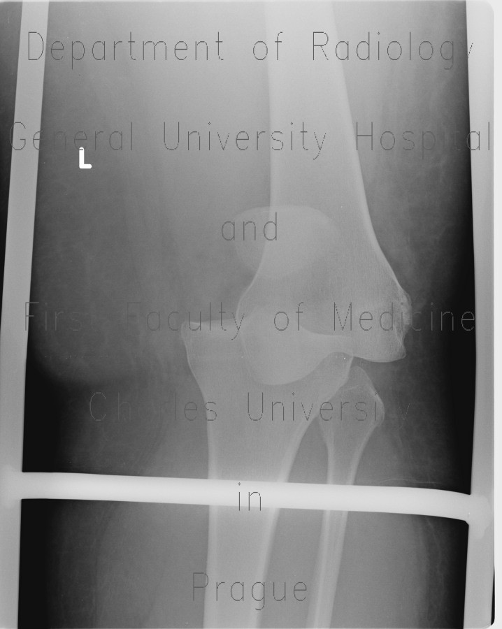 Radiology image - Dislocation of knee joint: Extremity, Bone: X-ray - Plain radiograph