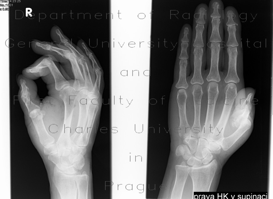 Radiology image - Dislocation of the first interphalangeal and metacarpophalangeal joint: Extremity, Bone: X-ray - Plain radiograph