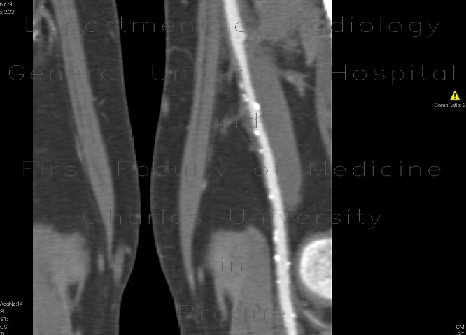 Radiology image - Distal anastomosis of femoro-popliteal bypass: Extremity, Vessels: CT - Computed tomography