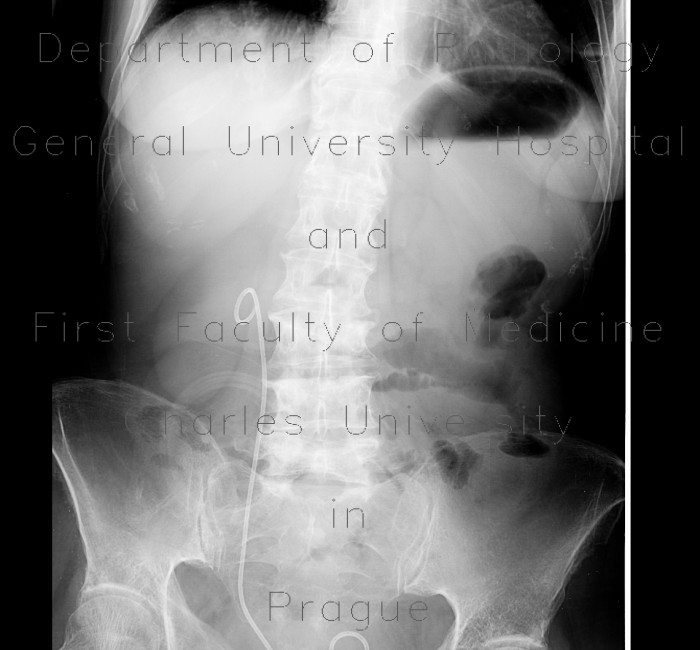 Radiology image - Distention of stomach: Abdomen, Stomach: X-ray - Plain radiograph