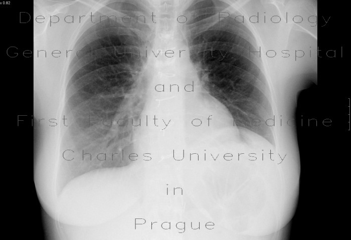Radiology image - Elevation of left hemidiaphragm: Thorax, Mediastinum and pleural cavity: X-ray - Plain radiograph
