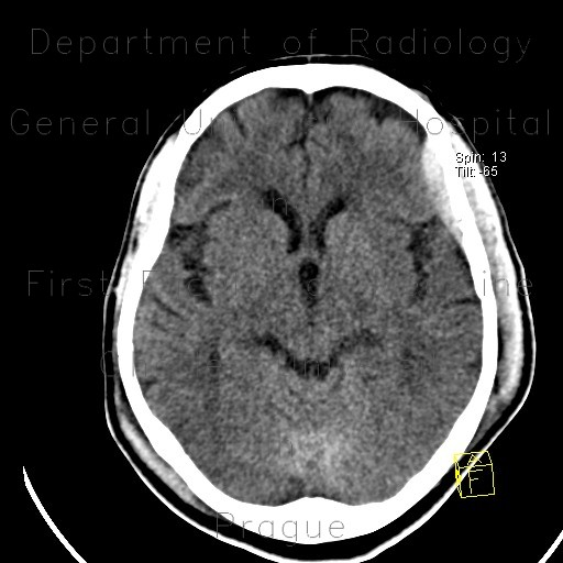 Radiology image - Epidural hematoma, subarachoid hemorrhage, cerebral contusion, skull fissure: Brain, Head and Neck, Bone, Brain: CT - Computed tomography
