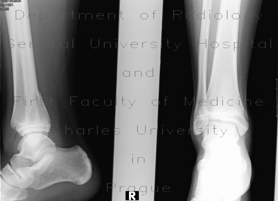 Radiology image - Epiphyseal fracture of the posterior edge of tibia, Salter Harris II: Extremity, Bone: X-ray - Plain radiograph