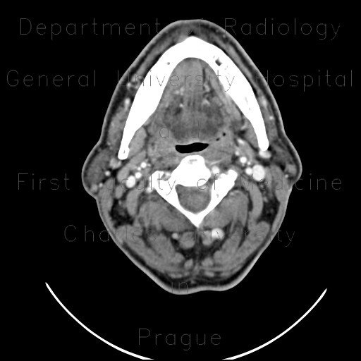 Radiology image - Expansion of right sublingual gland: Head and Neck, Oral cavity: CT - Computed tomography