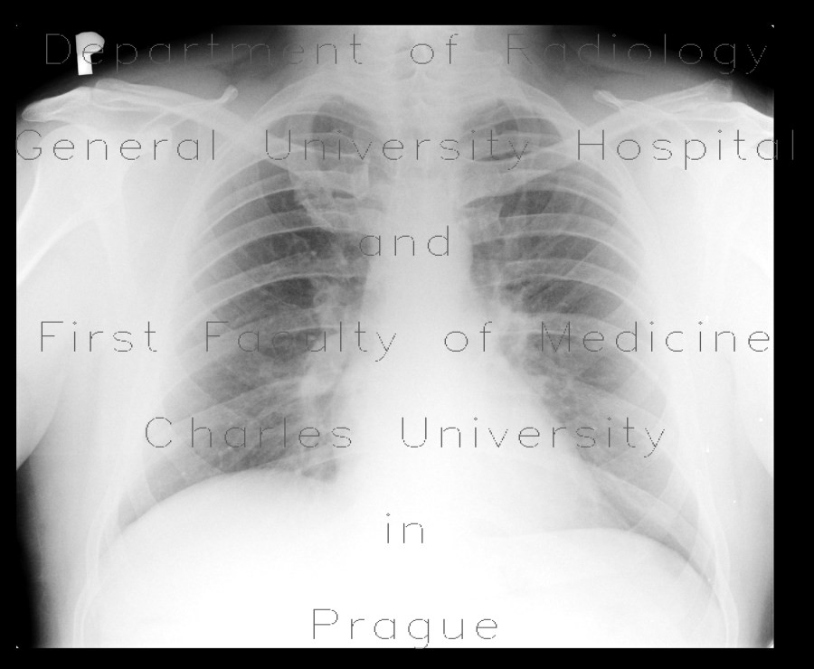 Radiology image - Extensive pulmonary embolism and CT angiogram sign on chest radiograph: Thorax, Vessels: X-ray - Plain radiograph