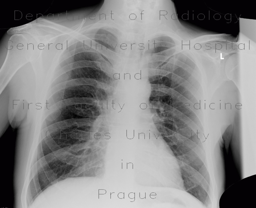 Radiology image - Fenestration of rib: Thorax, Bone: X-ray - Plain radiograph