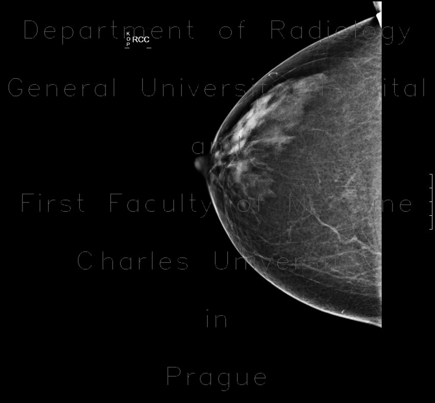 Radiology image - Fibroglandular type of breast, Tabar I: Thorax, Breast: X-ray - Plain radiograph