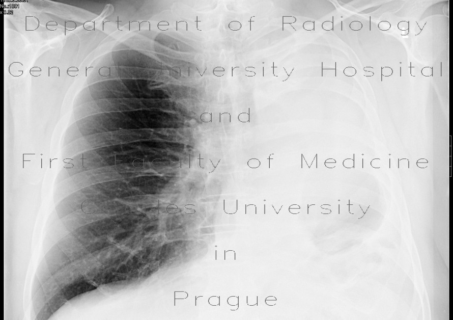 Radiology image - Fibrothorax after pneumonectomy: Thorax, Lung: X-ray - Plain radiograph