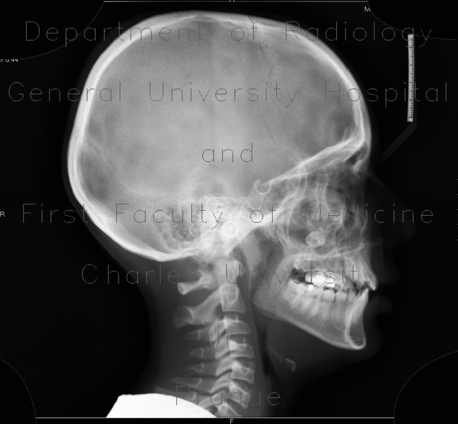 Radiology image - Fibrous dysplasia of the left maxillary sinus: Head and Neck, Bone, Sinuses: X-ray - Plain radiograph