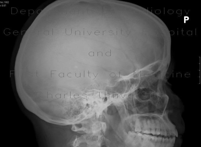 Radiology image - Fissure of frontal bone: Spine and Axial, Bone: X-ray - Plain radiograph