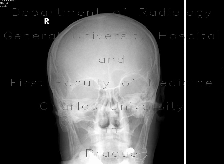 Radiology image - Fissure of the skull, mandible: Spine and Axial, Bone: X-ray - Plain radiograph