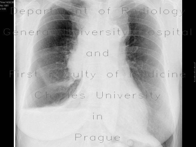 Radiology image - Fluidopneumothorax: Thorax, Mediastinum and pleural cavity: X-ray - Plain radiograph