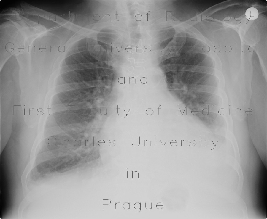 Radiology image - Fluidothorax, hemothorax and pneumothorax, complication of evacuation: Thorax, Lung, Mediastinum and pleural cavity: X-ray - Plain radiograph