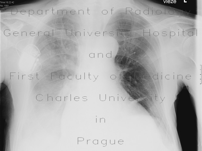 Radiology image - Fluidothorax, supine radiograph: Thorax, Mediastinum and pleural cavity: X-ray - Plain radiograph