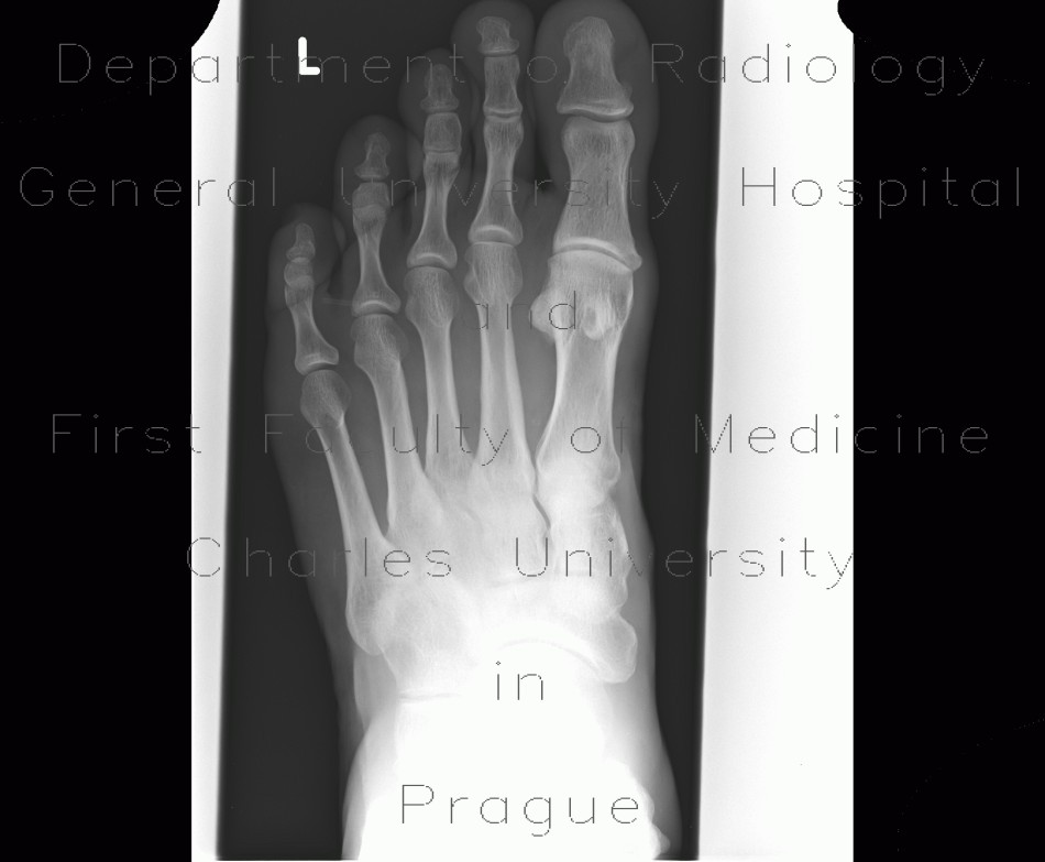 Radiology image - Foreign body in the foot, pipette: Extremity, Other, Soft tissue: X-ray - Plain radiograph
