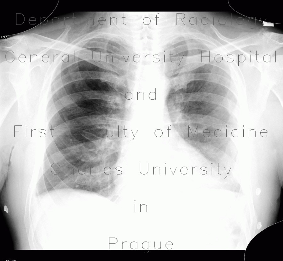 Radiology image - Forked rib: Thorax, Bone: X-ray - Plain radiograph