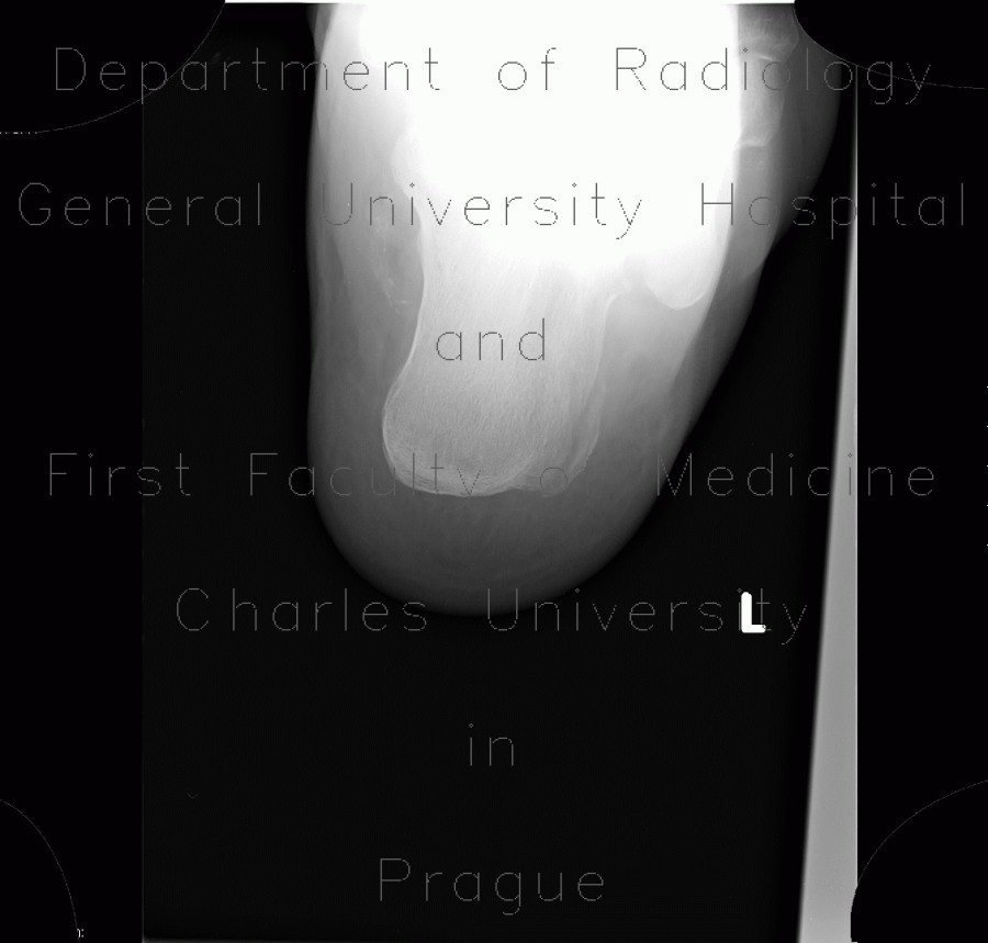 Radiology image - Fracture of calcaneus, atypical: Extremity, Bone: X-ray - Plain radiograph