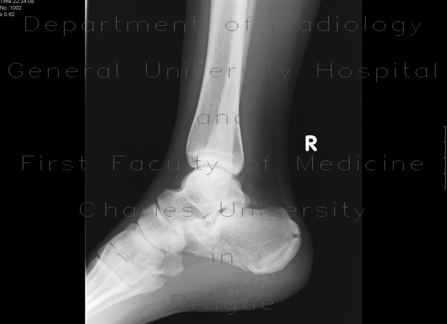 Radiology image - Fracture of calcaneus, comminuted: Extremity, Bone: X-ray - Plain radiograph
