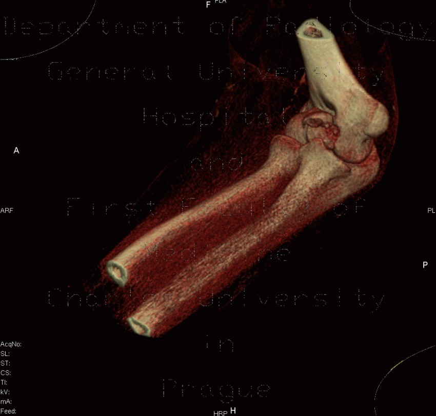 Radiology image - Fracture of capitulum humeri, VRT: Extremity, Bone: CT - Computed tomography