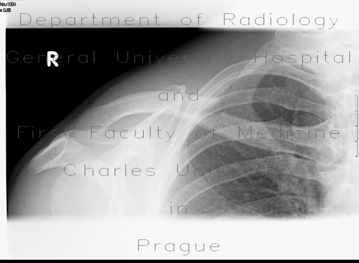 Radiology image - Fracture of collar bone, clavicle: Extremity, Bone: X-ray - Plain radiograph