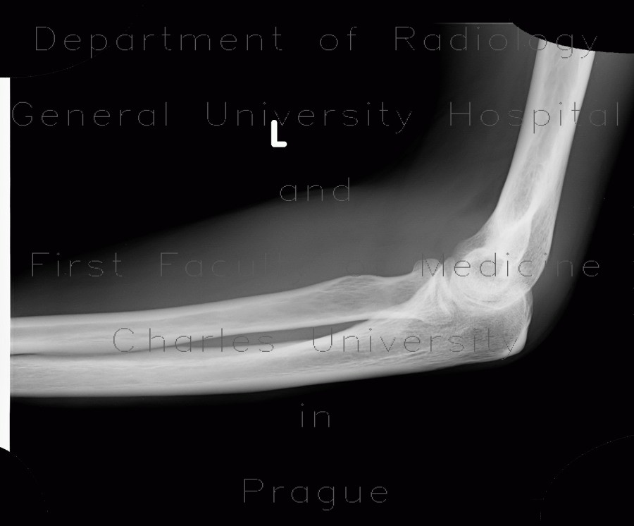 Radiology image - Fracture of head of radius, fat pad sign, sail sign: Extremity, Bone: X-ray - Plain radiograph