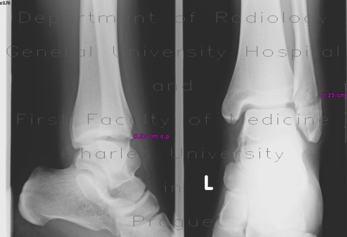 Radiology image - Fracture of lateral ankle, distal fibula, Weber B, subluxation of talus: Extremity, Bone: X-ray - Plain radiograph