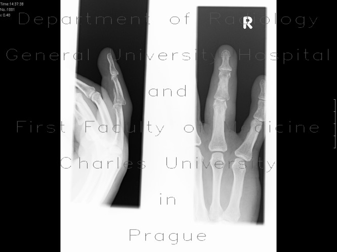 Radiology image - Fracture of middle phalanx: Extremity, Bone: X-ray - Plain radiograph
