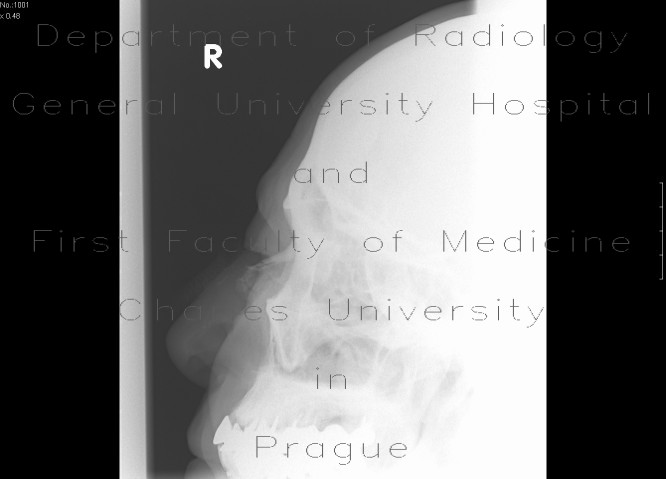 Radiology image - Fracture of nasal bones, comminuted: Head and Neck, Bone: X-ray - Plain radiograph
