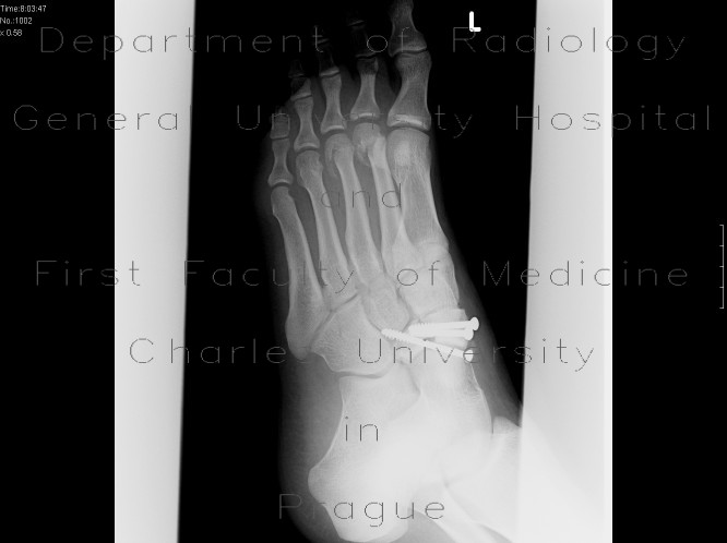 Radiology image - Fracture of navicular bone and metatarsal bones: Extremity, Bone: X-ray - Plain radiograph