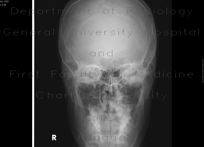Radiology image - Fracture of orbital floor, teardrop sign, blowout fracture, hemosinus: Head and Neck, Orbit, Sinuses: X-ray - Plain radiograph