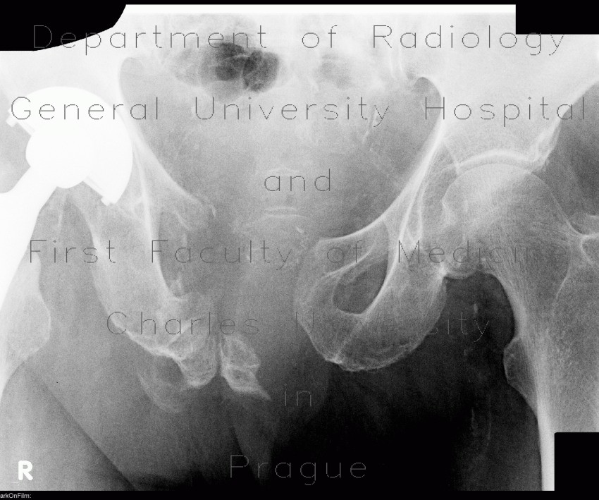 Radiology image - Fracture of pelvis, old: Spine and Axial, Bone: X-ray - Plain radiograph