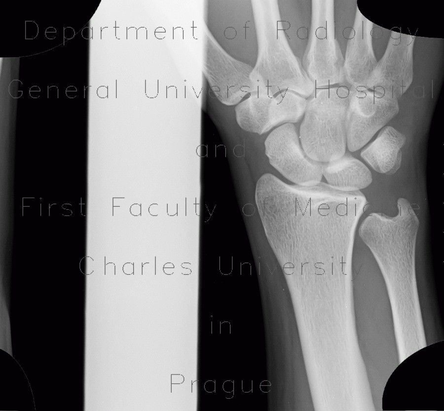 Radiology image - Fracture of scaphoid bone, decalcination of the fracture line, three weeks after trauma: Extremity, Bone: X-ray - Plain radiograph