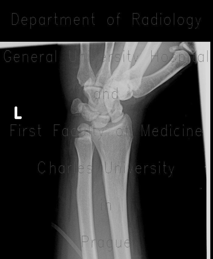 Radiology image - Fracture of scaphoid bone, dislocation of pisiform bone, abruption of lunate: Extremity, Bone: X-ray - Plain radiograph