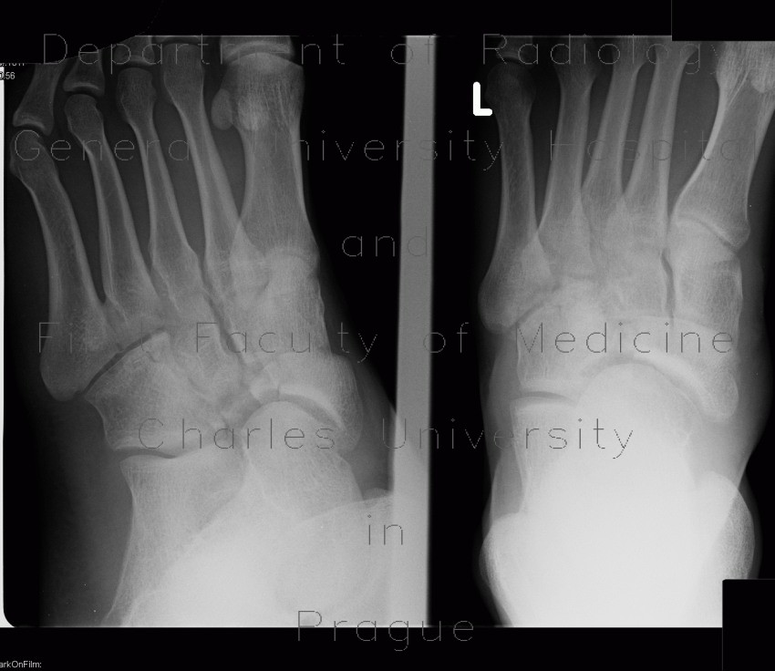 Radiology image - Fracture of tarsal bones: Extremity, Bone: X-ray - Plain radiograph
