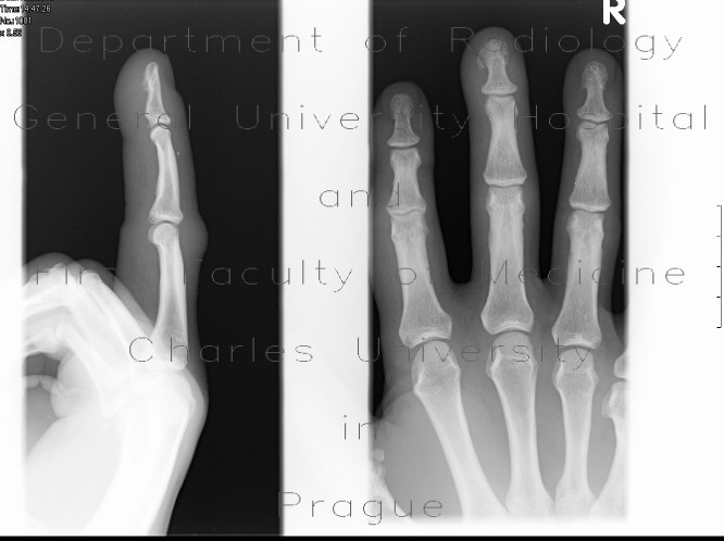 Radiology image - Fracture of the distal phalangeal tuberosity: Extremity, Bone: X-ray - Plain radiograph