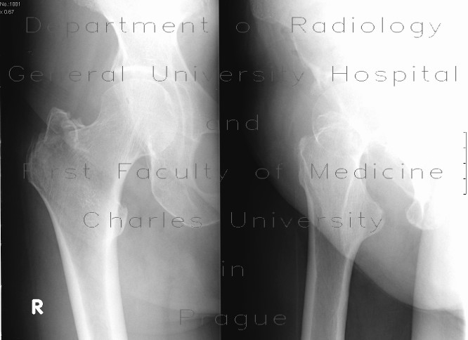 Radiology image - Fracture of the greater tronchanter: Extremity, Bone: X-ray - Plain radiograph