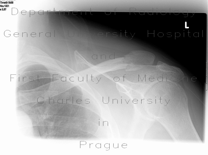 Radiology image - Fracture of the lateral end of the collar bone (clavicle): Extremity, Bone: X-ray - Plain radiograph