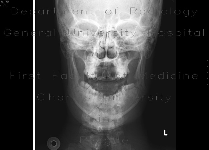 Radiology image - Fracture of the mandible: Head and Neck, Bone, Oral cavity: X-ray - Plain radiograph