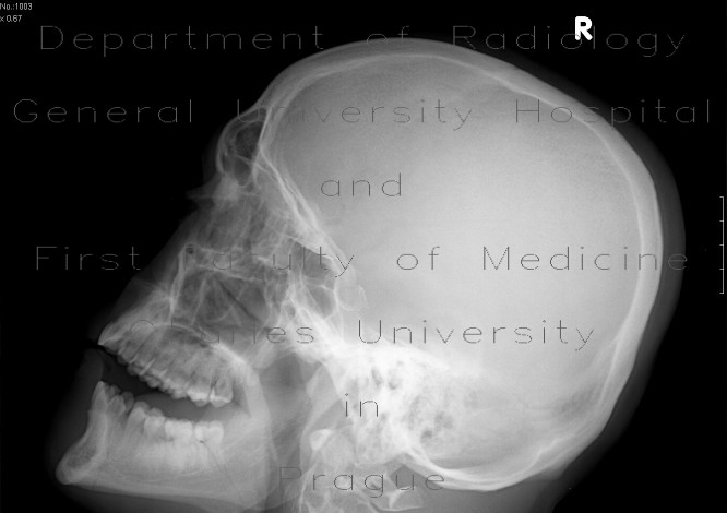 Radiology image - Fracture of the mandible: Head and Neck, Bone: X-ray - Plain radiograph