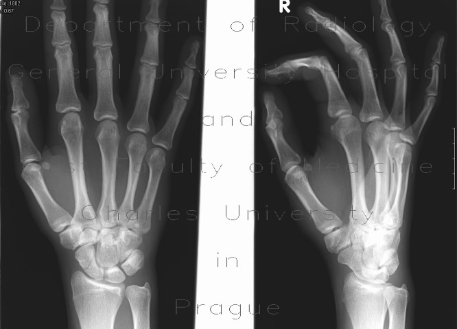 Radiology image - Fracture of the navicular bone: Extremity, Bone: X-ray - Plain radiograph